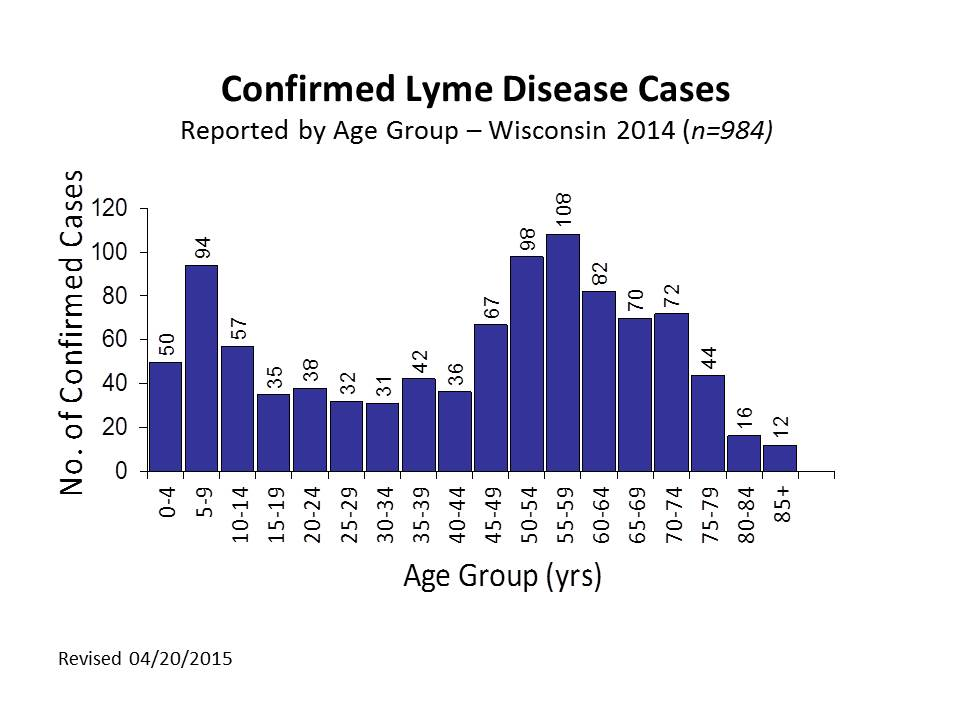 Confirmed Lyme Disease Cases by Age 2014