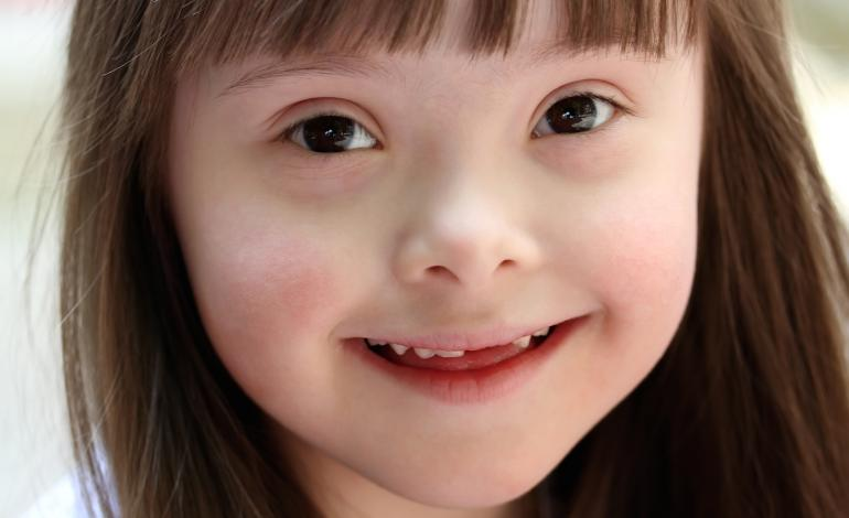 Smiling young girl reveals missing teeth